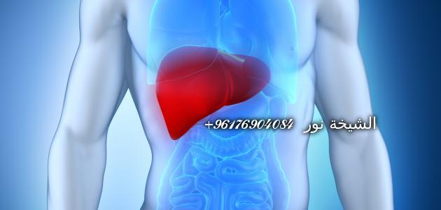 صورة لجميع انواع امراض الكبد الوبائية-شيخة نور الصادقة 0096176904084