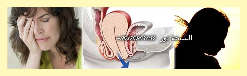 صورة علاج انقلاب الرحم عند المرأة-شيخة نور الصادقة 0096176904084