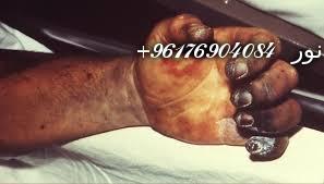 صورة للمرض حتى الموت بالسحر الأفريقي-أفضل شيخة روحانية 0096176904084