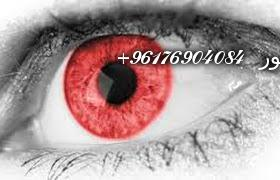 صورة اعراض وعلاج العين-النظرة-الحسد اقوى وافضل شيخة روحانية نور الصادقة0096176904084